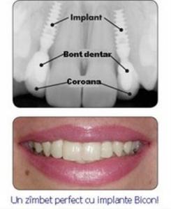 Implant dentar din titan