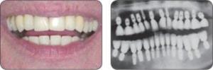 Arcada dentara sustinuta cu implante individuale